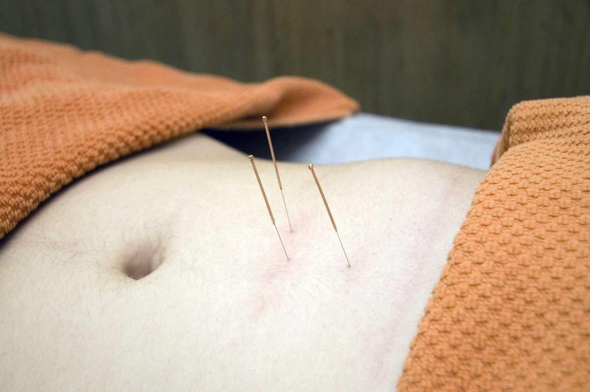 Needles in a torso for acupuncture
